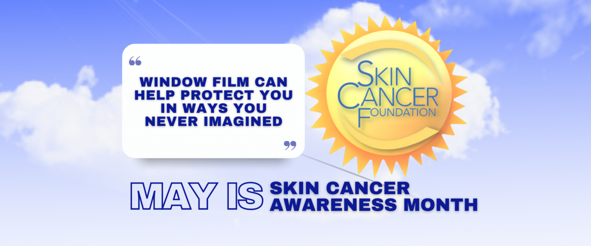 May Is Skin Cancer Awareness Month - See How Window Film Helps - Window Film and Window Tinting Services in Madera, California